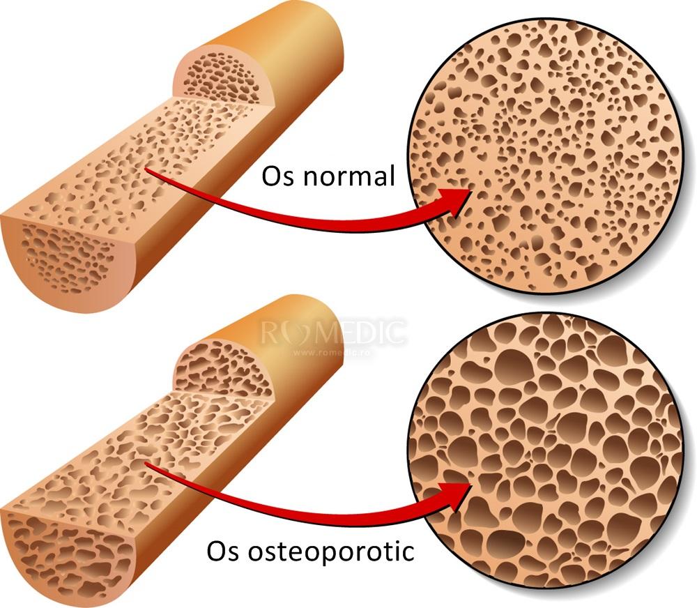 osteoporoza pierde în greutate poti sa slabesti cu barre3