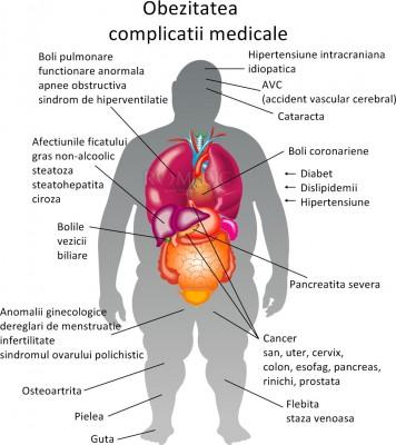 Cauzele, simptomele și tratamentul hipertensiunii pulmonare - Hipertensiune November