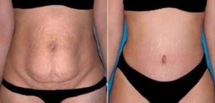 fese sfaturi pentru pierderea in greutate