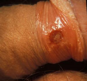 Tot ce trebuie să știi despre sifilis
