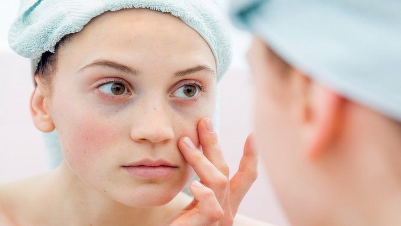 Cum afecteaza lupusul starea de sanatate