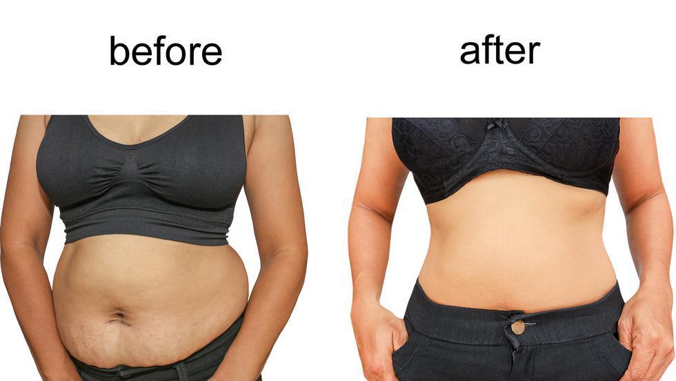 4 kilograme săptămână pierdere în greutate