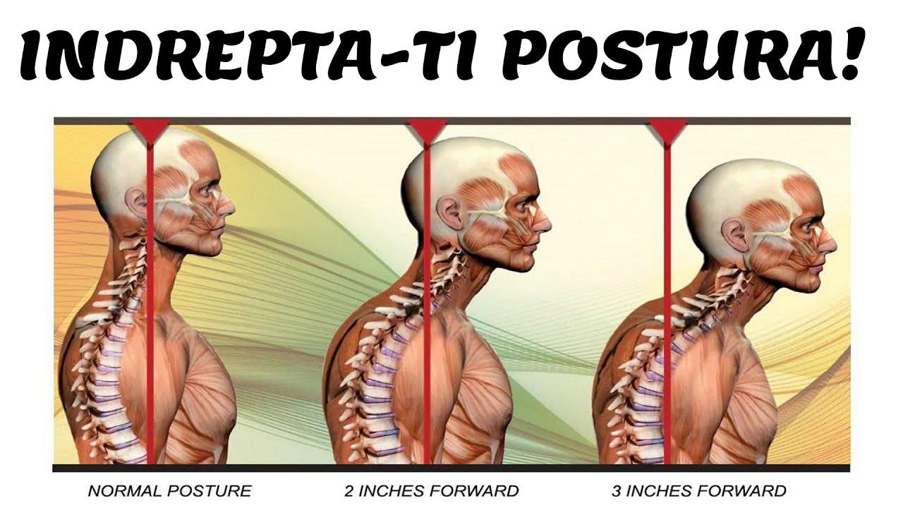 modalități de a slăbi în spate rutina de a pierde grăsimea corporală
