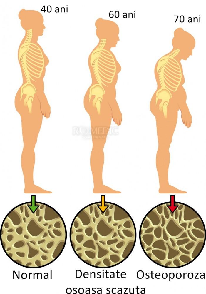 5 metode de a reduce riscul dezvoltării osteoporozei