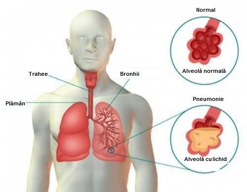 pneumonie simptome pierdere în greutate
