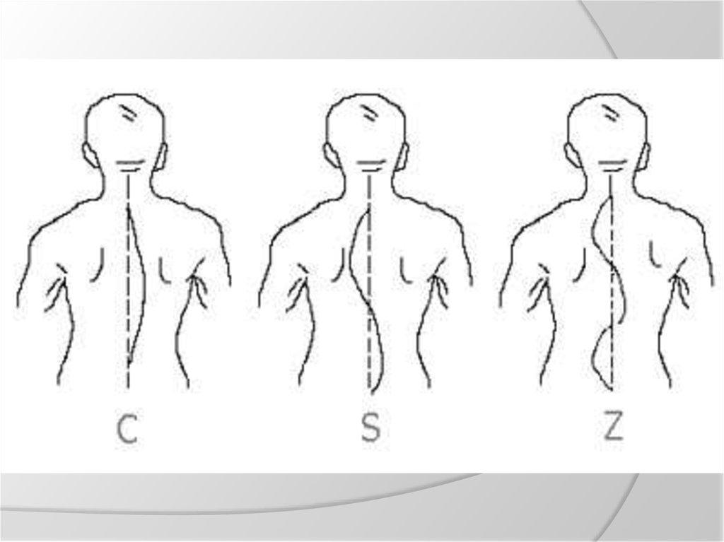 Ce doctor să consulte cu scolioza - Osteocondrozei -