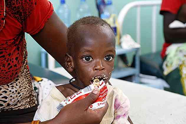 pierdere în greutate kwashiorkor