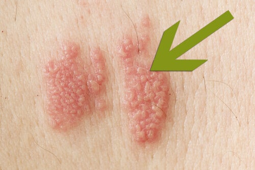 Zona zoster – simptome, manifestari, tratament