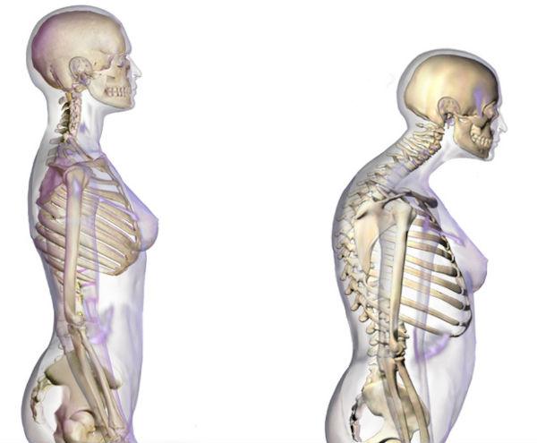 osteoporoză pentru pierderea în greutate