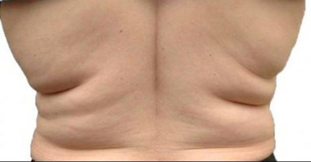 cum pierzi grăsimea din spate pierde grăsimea corporală, dar rămâne aceeași în greutate