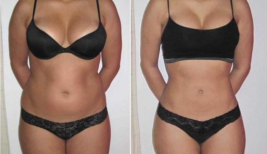 Pierdere în greutate vs inci ceea ce este o pierdere în greutate bună pe săptămână