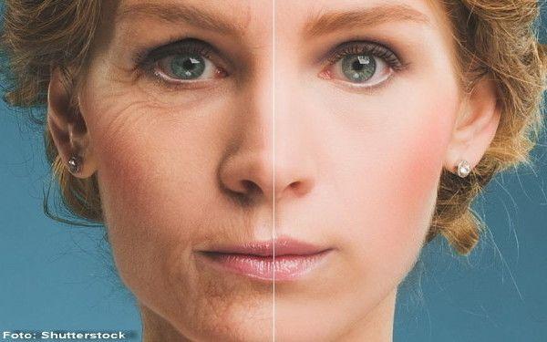 ELYTIS Hospital: Frumuseţea pielii depinde în mare măsură de stilul de viaţă