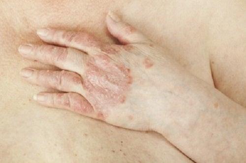 Pete pe piele: Tipuri, cauze si remedii | keracalita-jaristea.ro