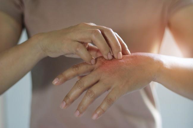 Mâncărimi pe tot corpul - CSID: Ce se întâmplă Doctore?