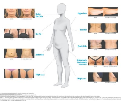 slăbirea corpului superior