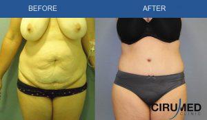 Agenții de scădere în greutate tummy tuck
