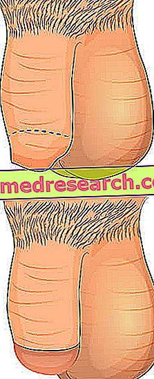 pierderea în greutate și circumcizia pierde in greutate edmonton