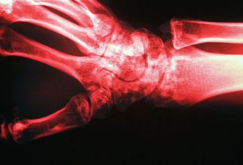 Osteoporoza, boala oaselor fragile