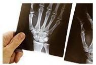 Osteoporoza - Ce este? Cauzele aparitiei, simptome si tratament