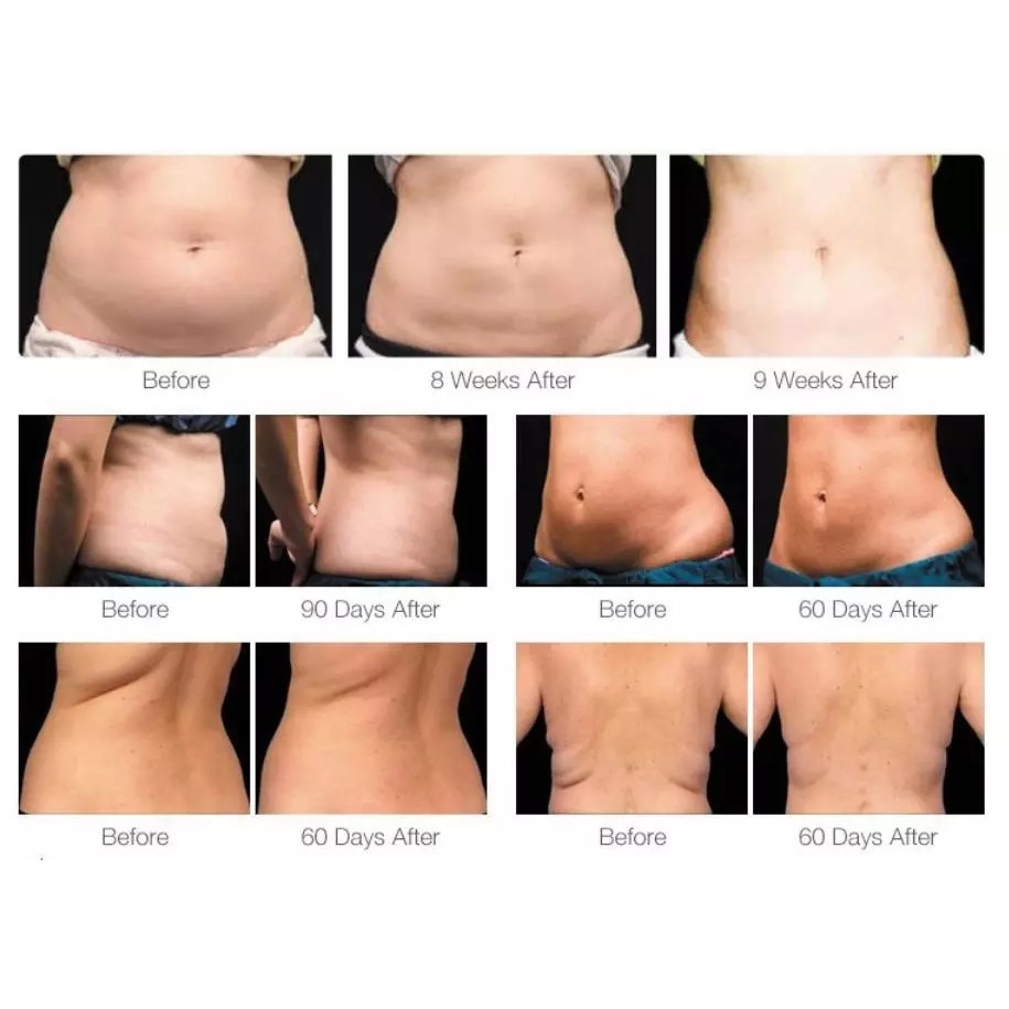 MÂNCATUL INTUITIV - O altfel de abordare pentru pierderea în greutate - Clinica ROUA