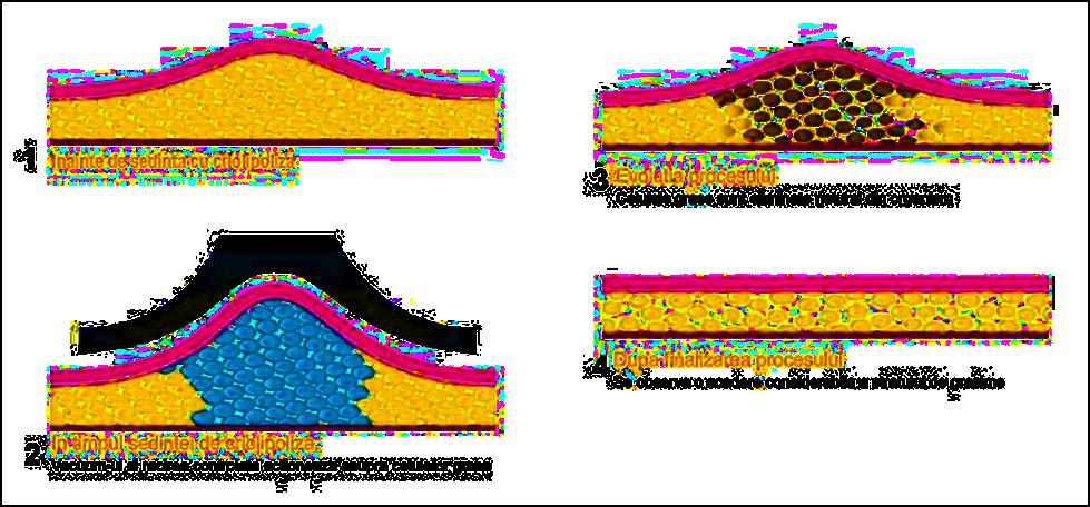 Scorţişoara arde celulele grase