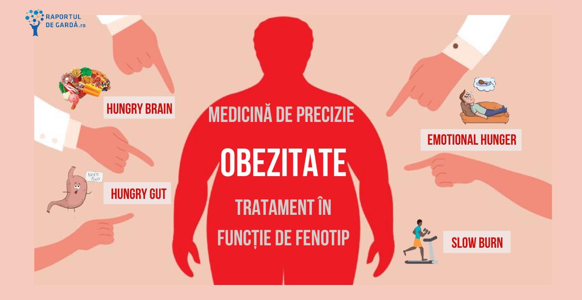 Scaderea in greutate prin interventia chirurgicala - este o solutie? | keracalita-jaristea.ro