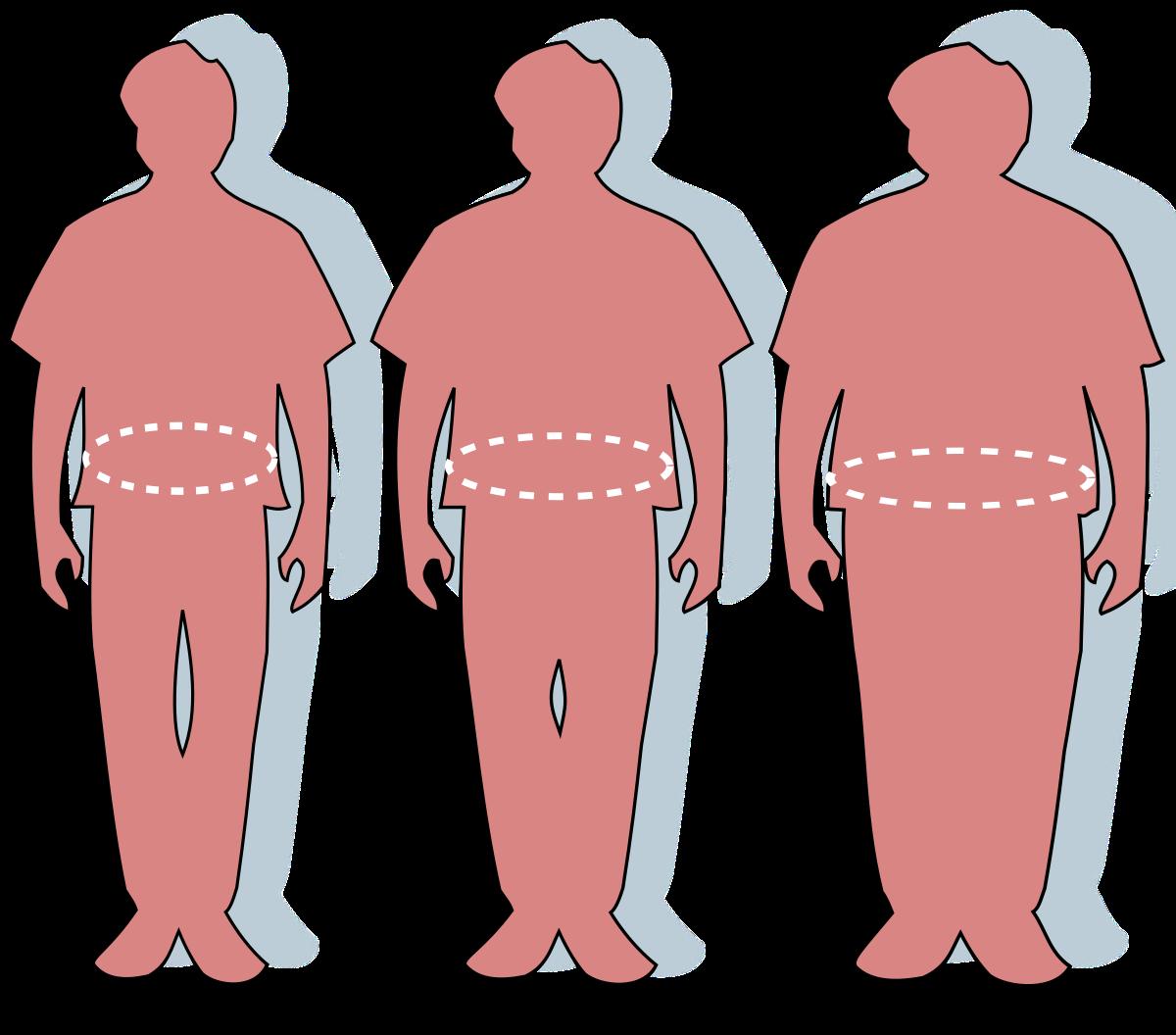 Obezitatea se trateaza diferit, in functie de persoana