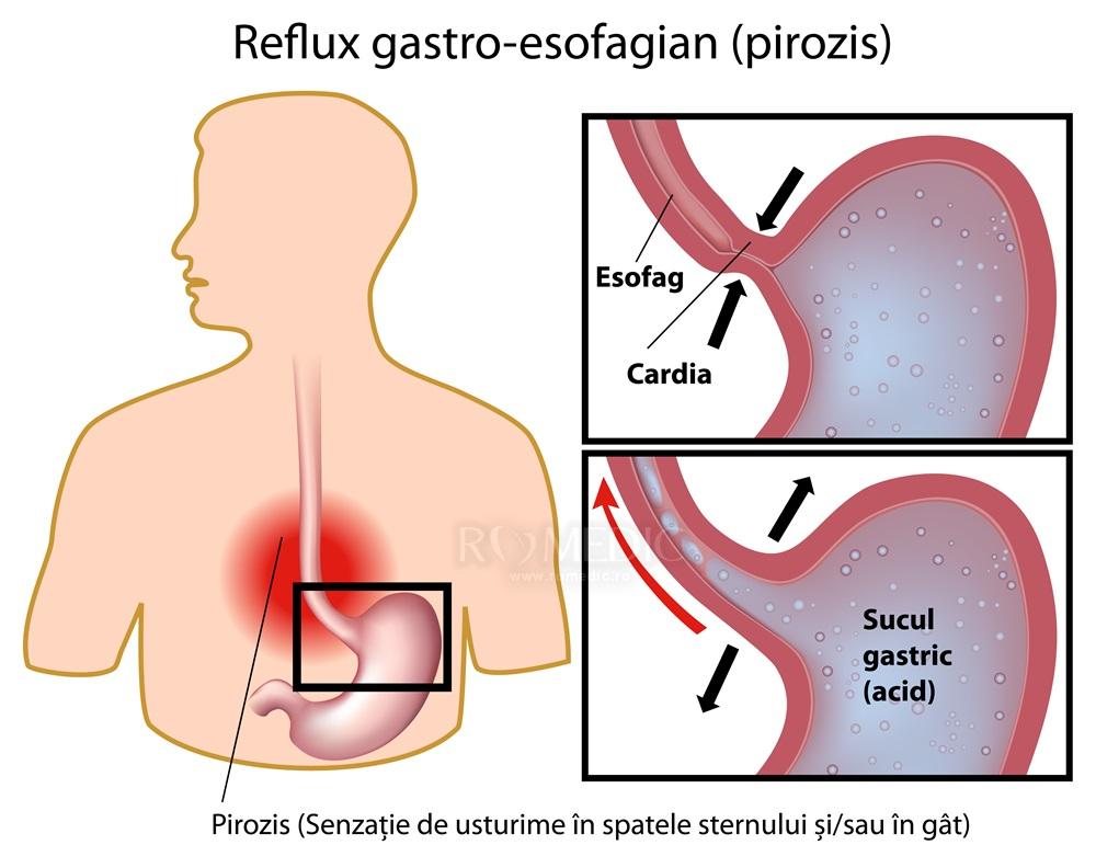 pierderea în greutate reflux infantil