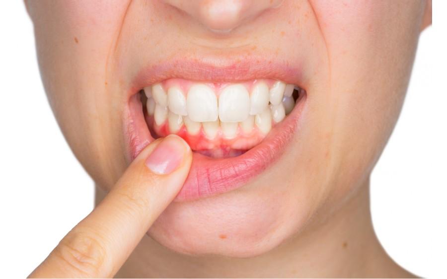 pierderea în greutate de protecție a gurii