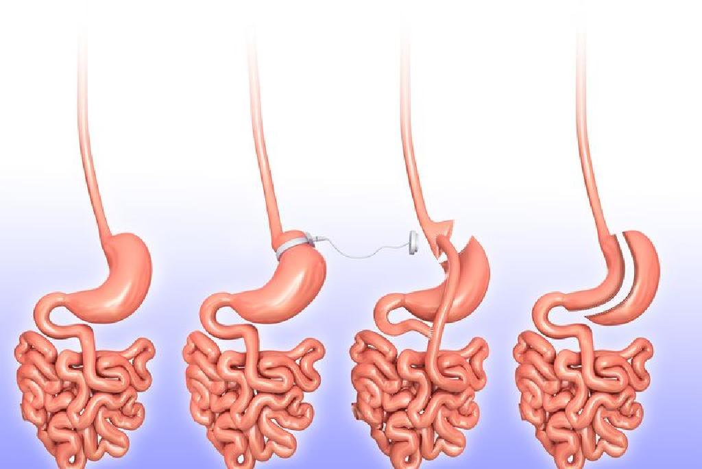 tipuri de intervenții chirurgicale pentru a pierde în greutate