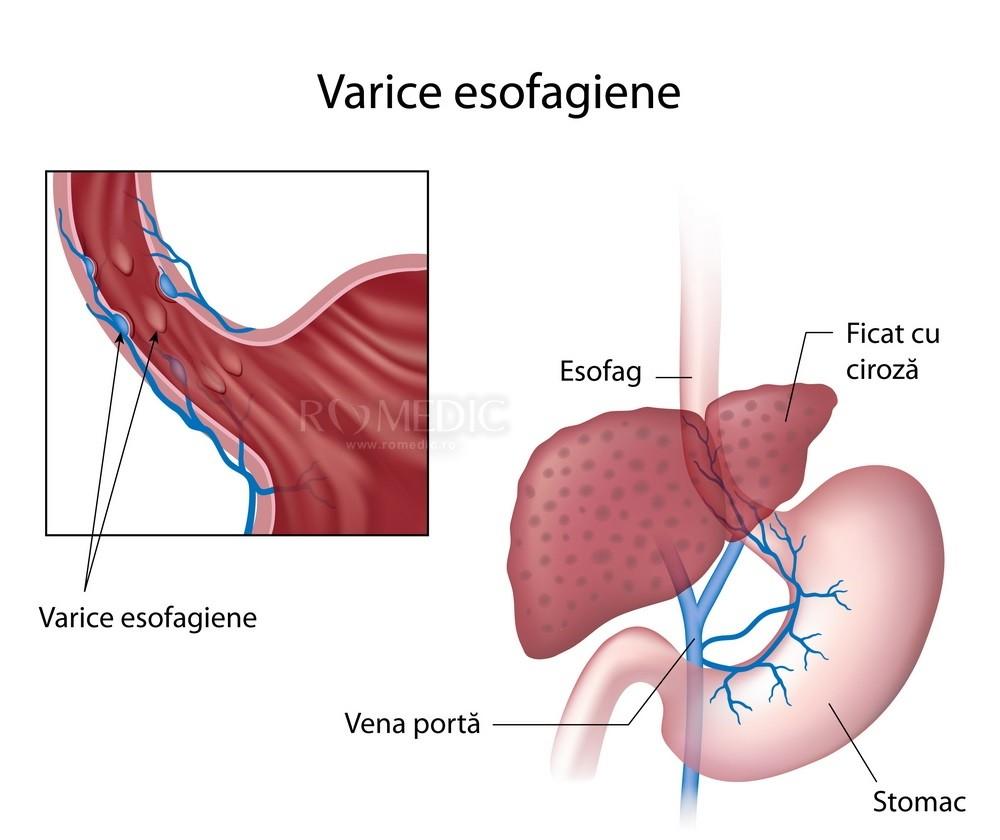 Tratamentul și diagnosticarea trombozei venoase portal